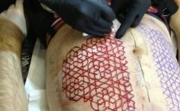 geometric scar