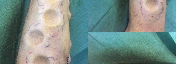 Subdermal,silicone implants